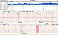 NORAV NH 301 LZ-EKG Analysesystem